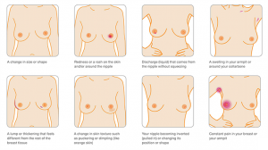 checking your breasts - WoMMen Network