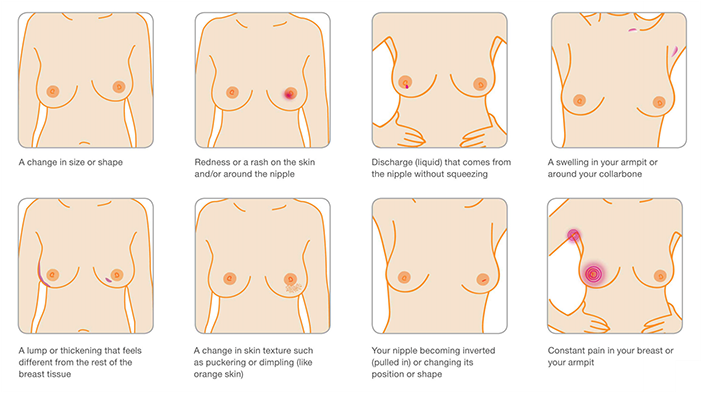 Attribution: Breast Cancer Care