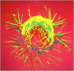Cancer cell small