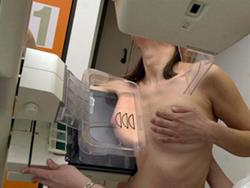 Medio-lateral for the mammogram examinaiton