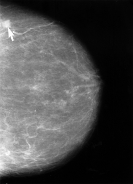 Breast imaging test mammogram